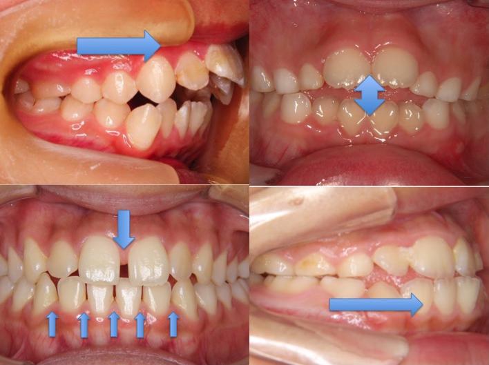 舌癖が歯並びに影響します