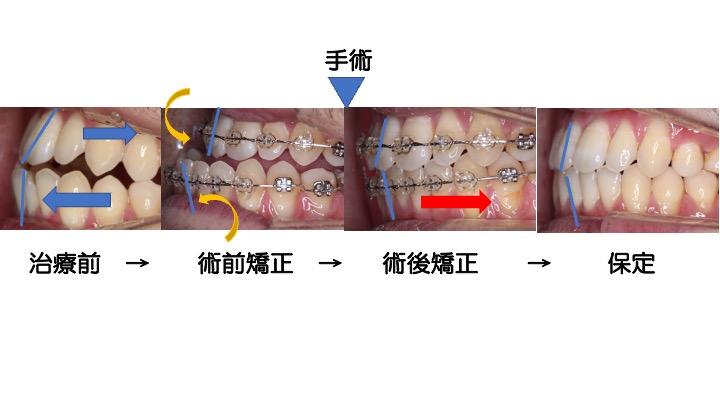 外科的矯正治療の流れを写真で説明